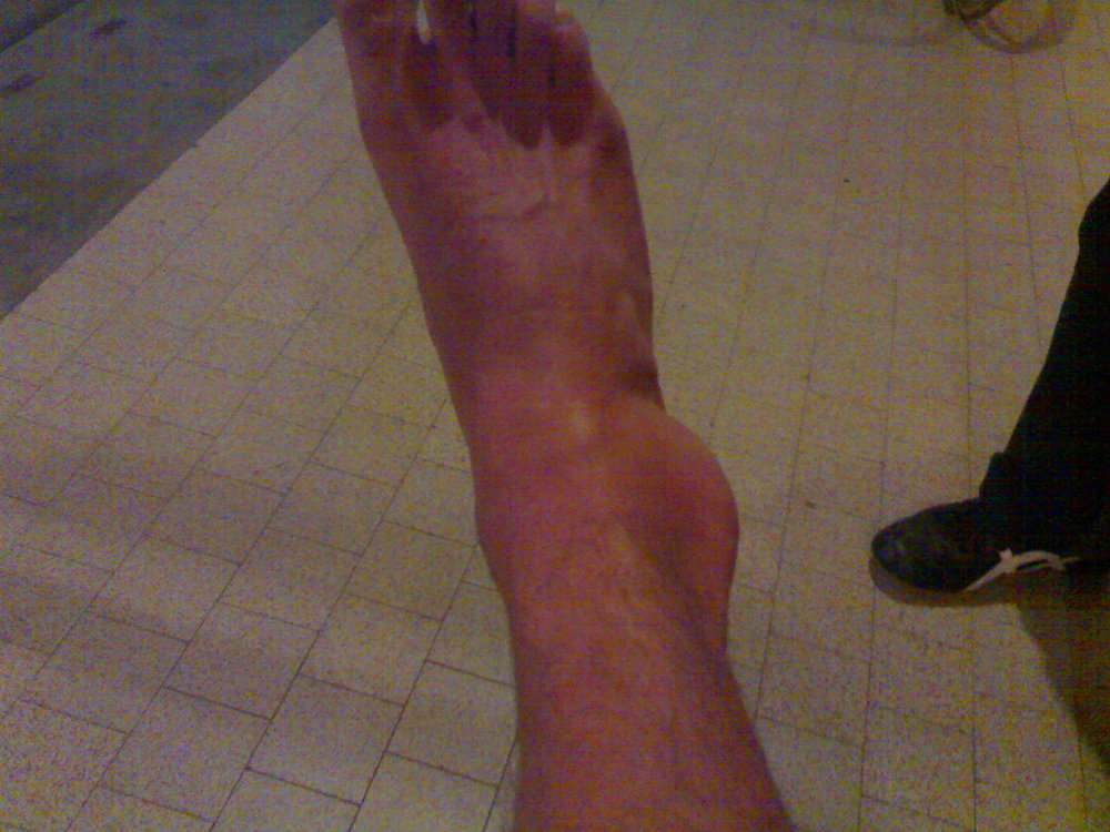 The ankle - not looking too pretty, 158 kb