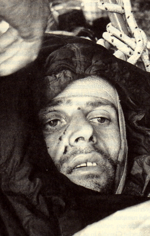 Claudio Corti shortly after being rescued from the Eiger in 1957, 171 kb