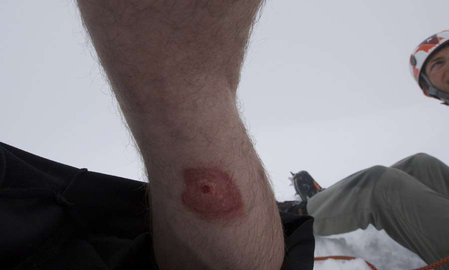 The crampon hole in Jon's leg! Ouch!, 64 kb