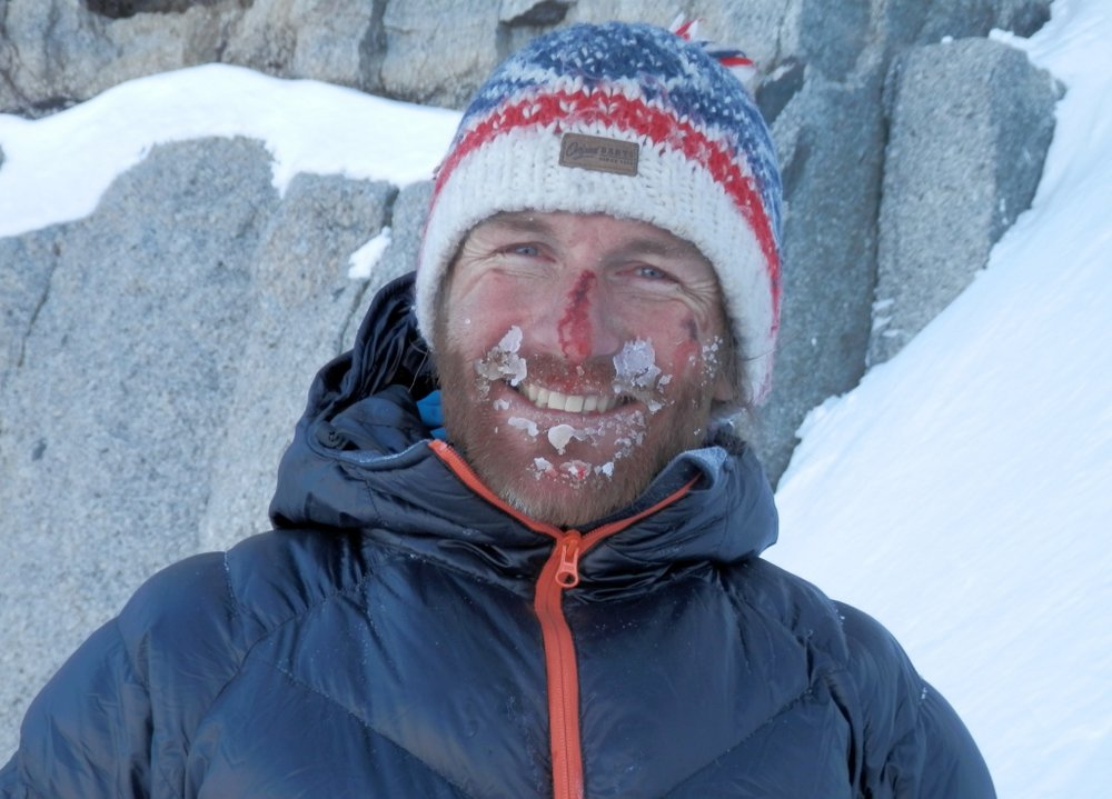 Mark Thomas takes a blow to the face on Jottnar, Aiguille du Midi, 118 kb