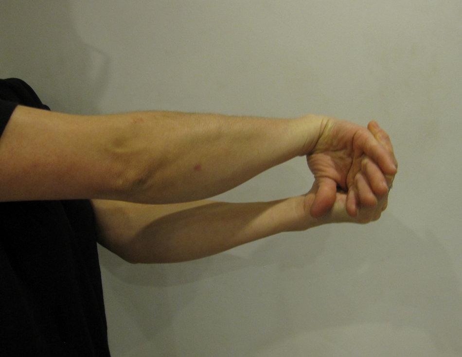 Wrist Extensor Stretch, 73 kb