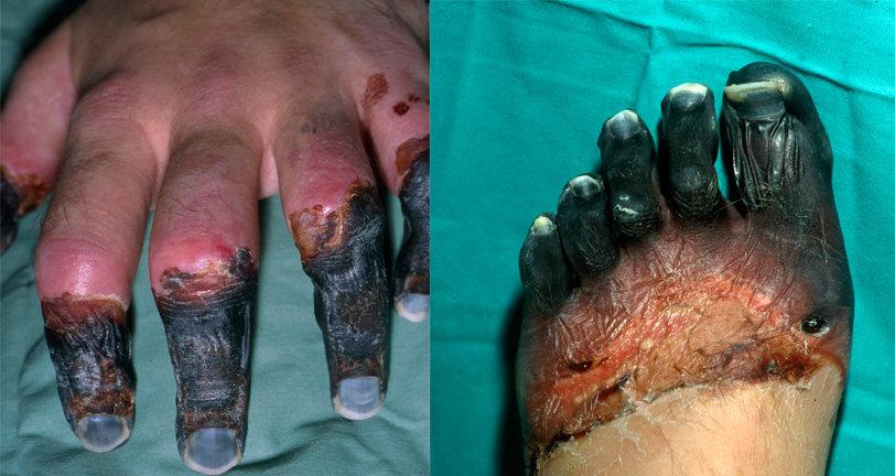 Nigel Vardy's Frostbitten Hands and Feet, 109 kb