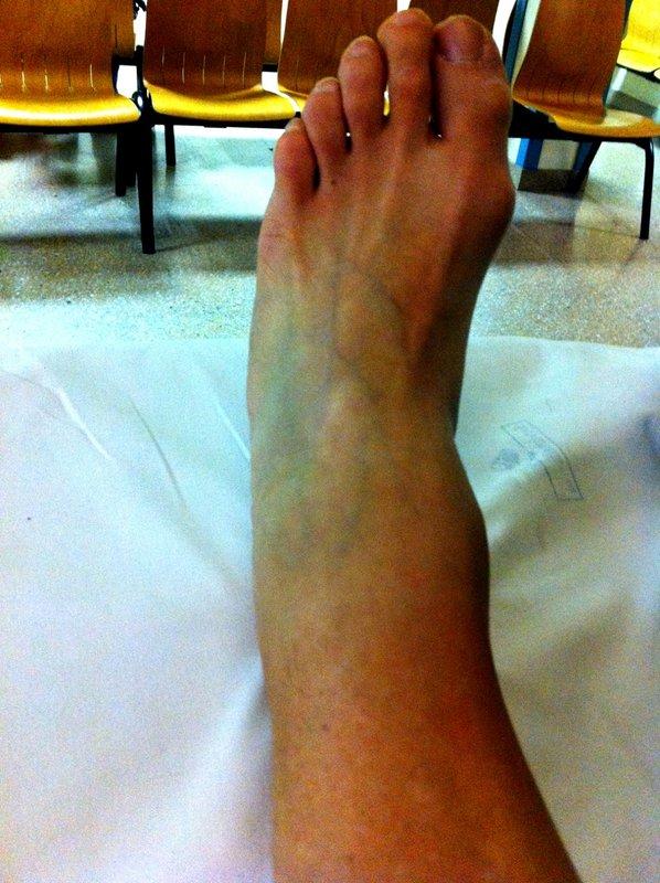 Lucy's broken leg, 98 kb